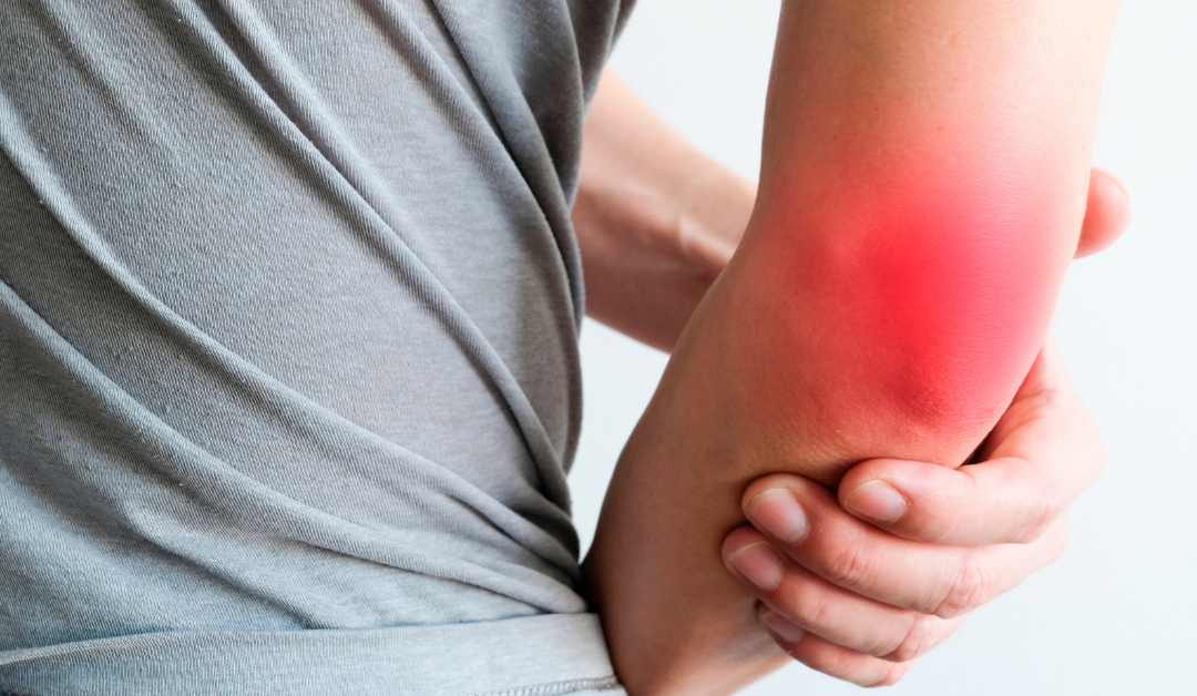 What is Bursitis and Can Physio Help?
